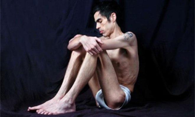 Según especialistas,la mayoría de los hombres que padecen anorexia ...